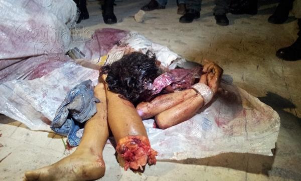 Contatos Mulheres Trauma Bayeux-27099